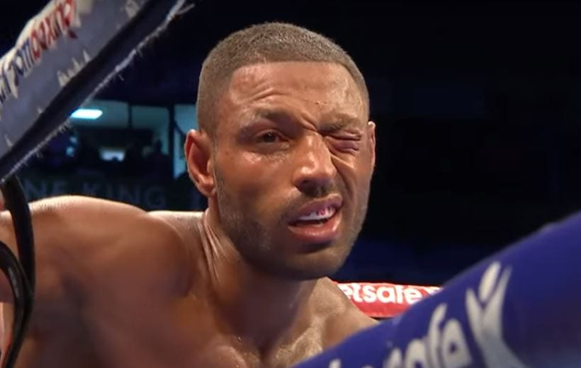 Kell Brook Eye