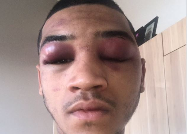 Conor Benn Reacts To Toughest