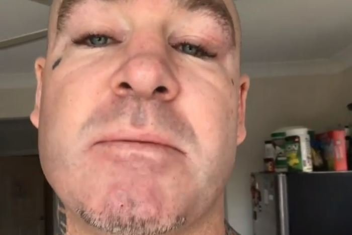 Browne Hits Back At Ricky Hatton