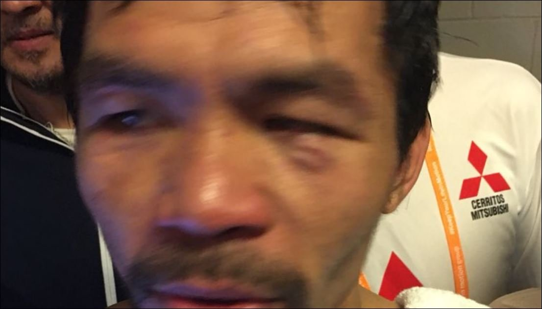 Eye Injury Suffered In Broner Fight Casts Doubts Over Pacquiao's Future
